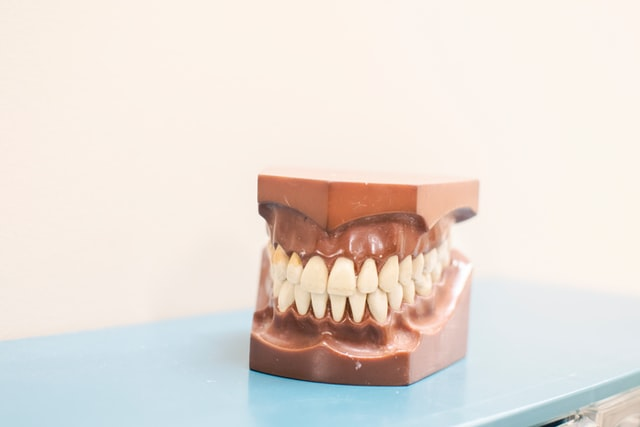 en que consiste la gingivectomia