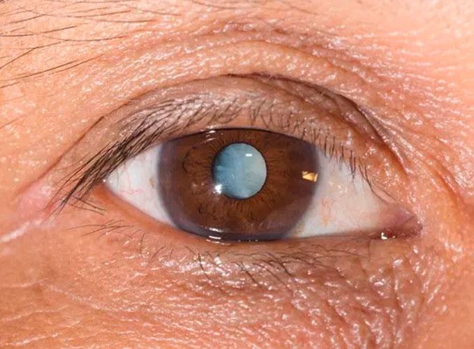 La operación de cataratas aumenta la esperanza de vida de las pacientes mayores