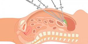 Laparoscopia en Clínica Abehsera