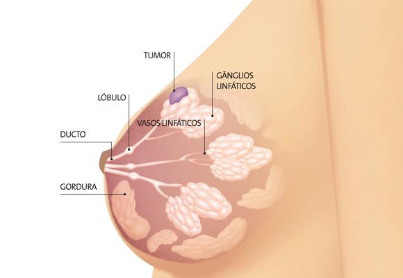 cancer hormonal de mama)