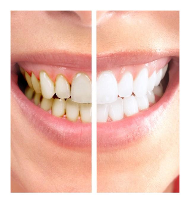 dentista em florianópolis