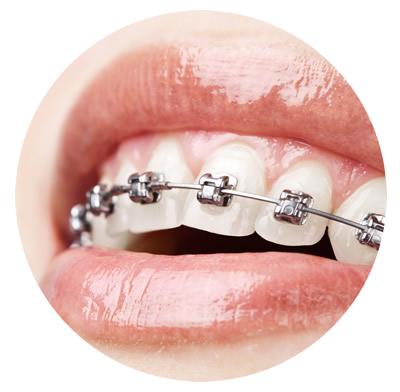 Como cuidar do seu aparelho e dos seus dentes durante um tratamento ortodôntico