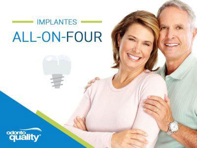 Guia do Implante All-on-Four
