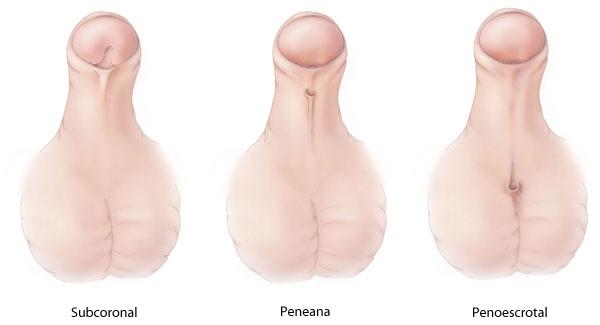 Anomalías del pene y de la uretra