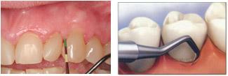 Fases-enfermedad-periodental-3.jpg