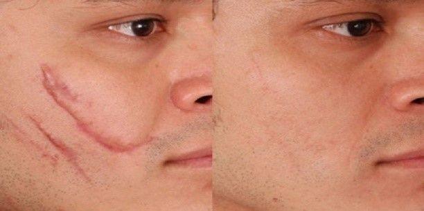 eliminacion de cicatrices 008