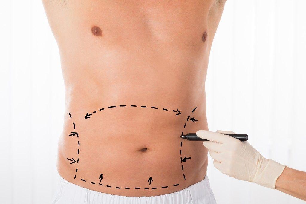 Abdominal and back liposuction Clínica Sanza - Cirugía Estética