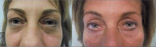 Blefaroplastia sin cirugía - antes y después 1