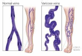 tratamiento de varices