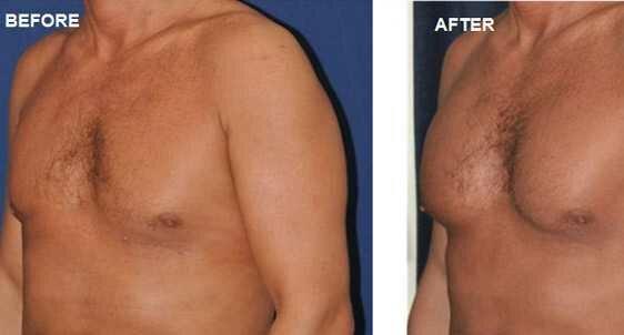 Implant pectoraux