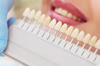 Facette dentaires
