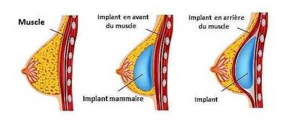 Chirurgie Augmentation seins Tunisie