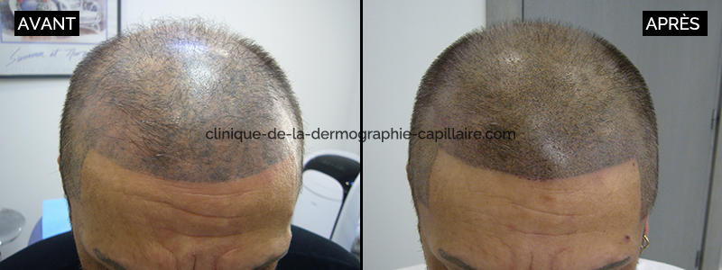 Correction of a bad scalp micropigmentation