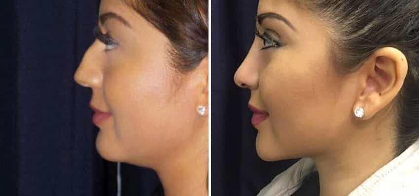 Rhinoplasty and Chin Surgery (Liposuction) | Clinique Dallas Plastic