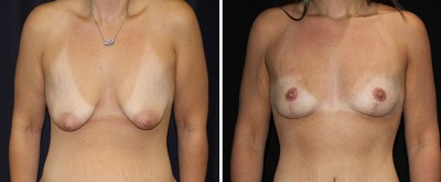 breast-lift-levantamiento-senos 1