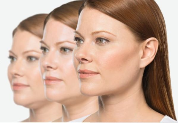 Kybella Injectable - Clinique Dallas Medspa and Laser Center