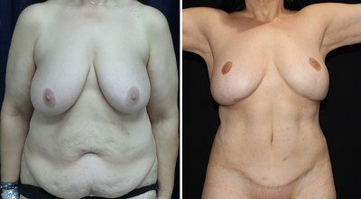 Abdominoplasty | Liposuction to Abdomen/Flanks | Breast Reduction