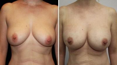 Tissue Expander | Breast Reconstruction Clinique Dallas