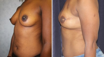 DIEP Flap - Nipple Reconstruction