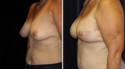 DIEP Flap - Nipple Sparing Mastectomy