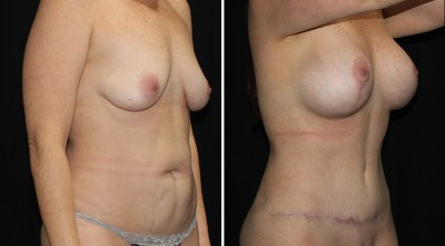 Abdominoplasty |  Liposuction to Abdomen/Flanks | Breast Augmentation Mastopexy - R:450cc / L:425cc