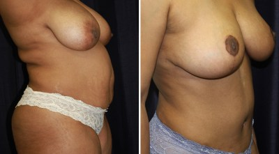 Tummy Tuck - Liposuction - Breast Reduction