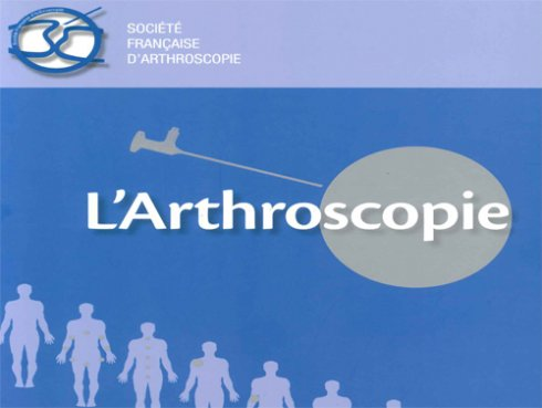 l arthroscopie clinique du sport