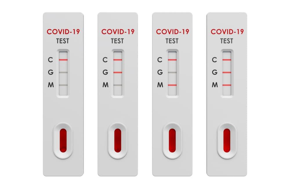SARS-CoV-2 (Covid-19): Diagnosis by IgG/IgM Rapid Test Clinisciences