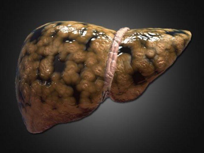 7 sfaturi pentru detoxifierea ficatului
