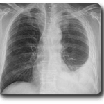 X-ray scan of lungs with mesothelioma