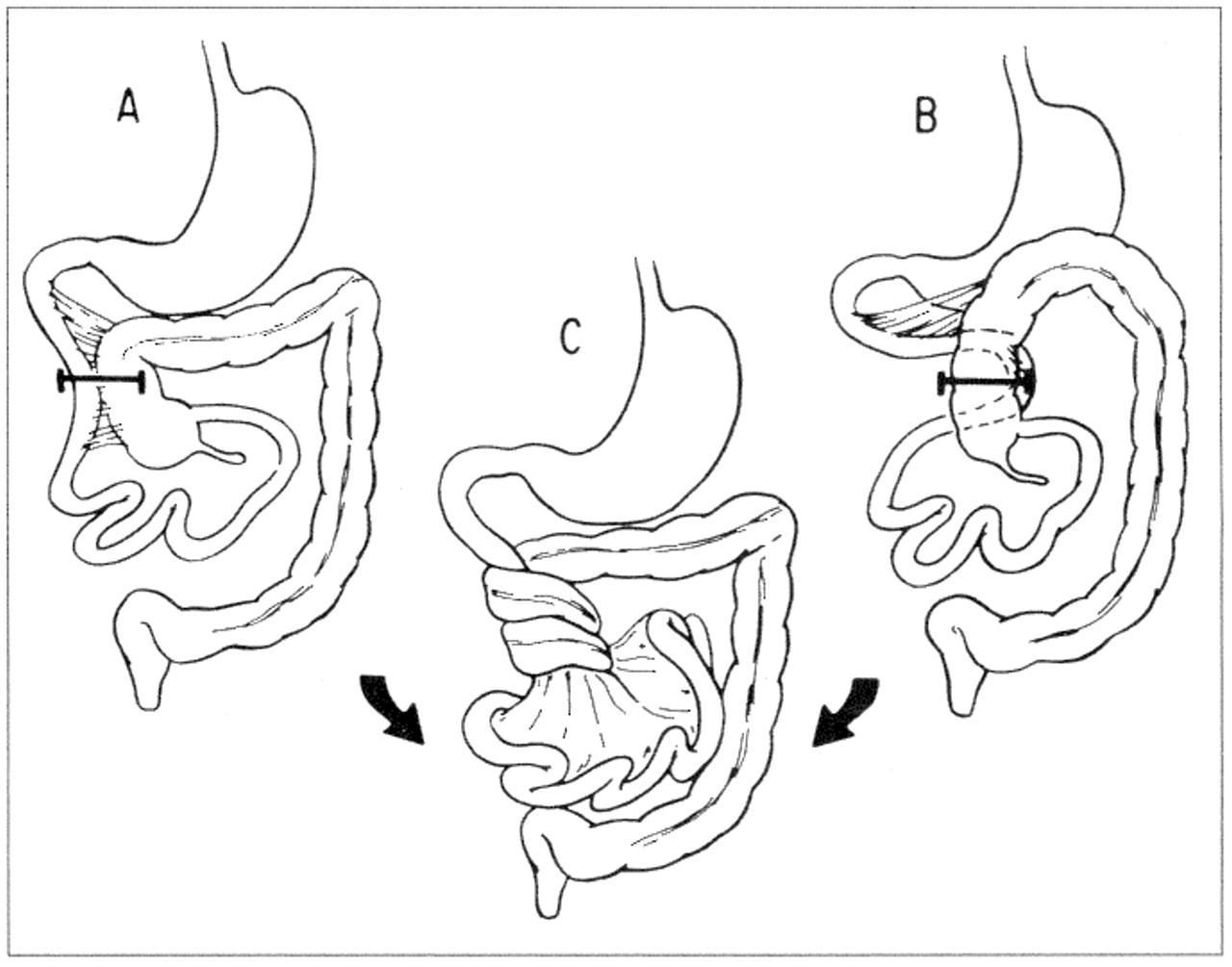 Defusing The Intra Abdominal Ticking Intestinal