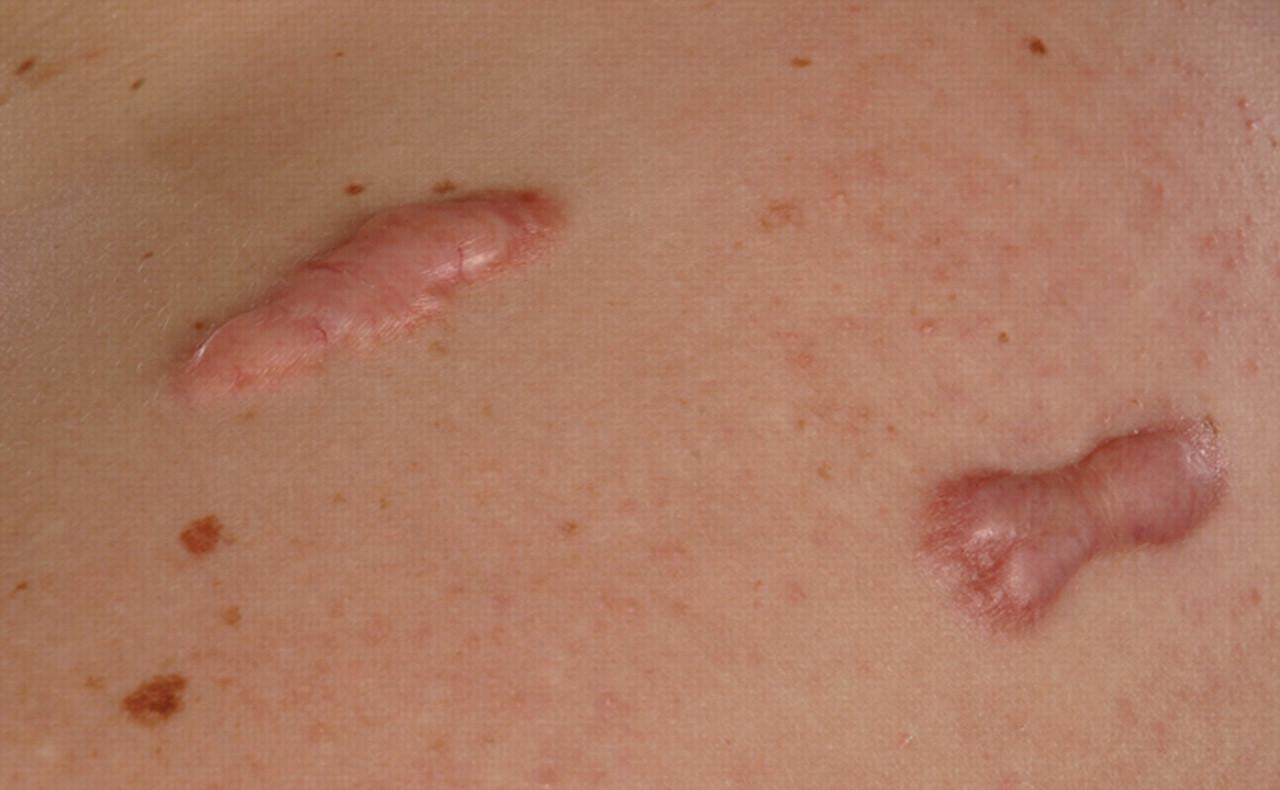 A Spontaneous Skin Lesion Cmaj