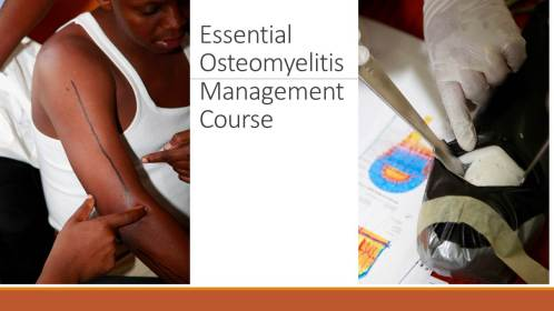 Essential Ostemylitis Management