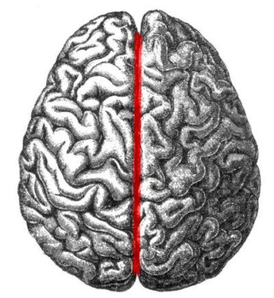 Il corpo calloso delle donne è più grande e contiene un 30% di neuroni in più…