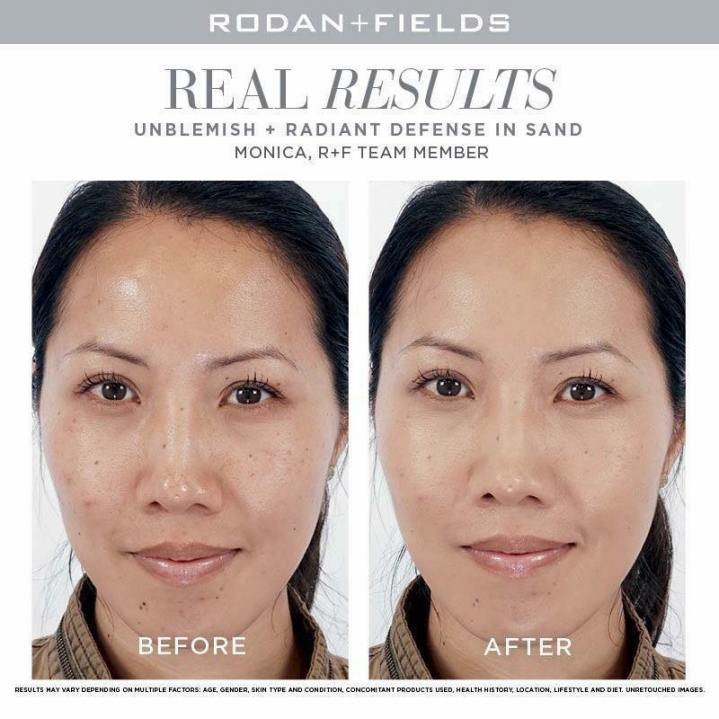 Rodan + Fields, Radiant Defense