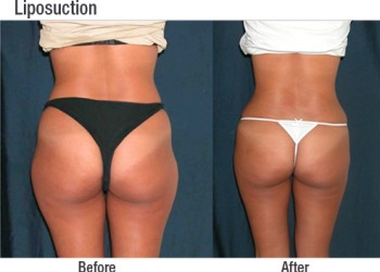 Liposuction 6