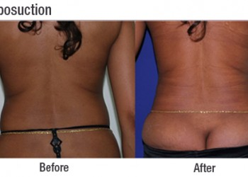 Liposuction 8