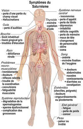 douleur aux reins symptômes