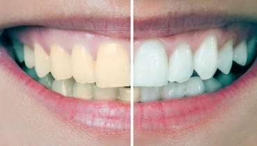 Blanqueamiento Dental0.1