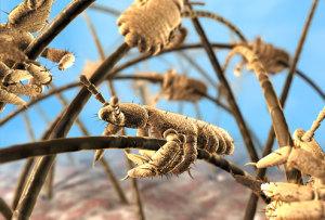 PRinc_rm_photo_of_head_lice_infestation