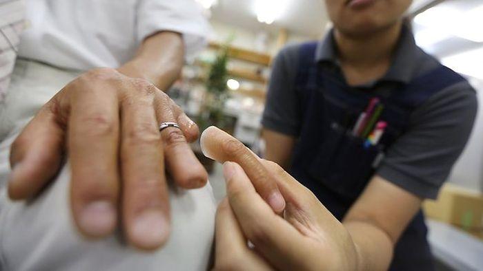 prótese de dedo mindinho