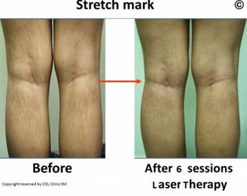 Stretch Mark 1 (640x492) (640x507)