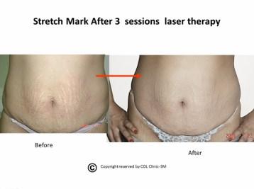 Stretch Mark 8 (640x477)