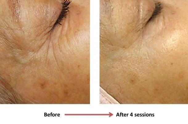 Eye wrinkle 3