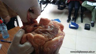 Disección del Corazón 13