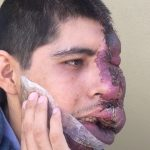 Edgar Romero llega de EU tras primera operación de hemangioma 150x150 - Edgar Romero llega de EU tras primera operación de hemangioma