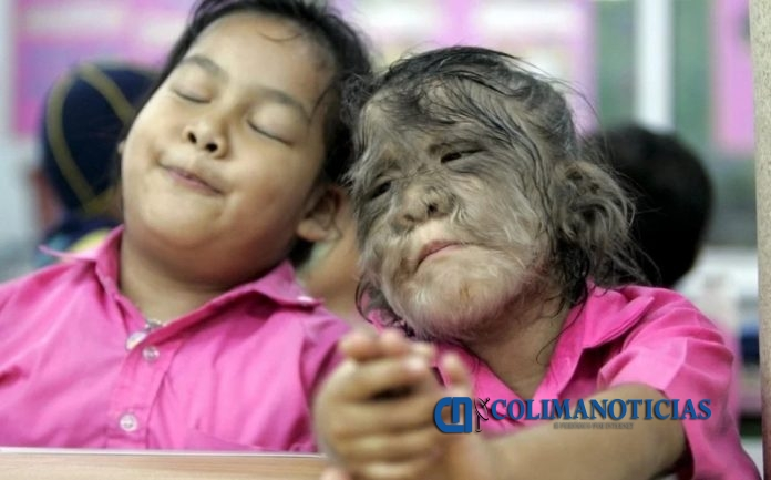 síndrome del hombre lobo niños en españa 696x433 - 17 niños en España contraen 'síndrome del hombre lobo' por tomar medicina incorrecta