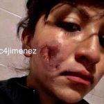 policia lesionada 150x150 - 'Detrás del uniforme también hay mujeres', manifiesta policía lesionada en CDMX durante marcha - #Noticias