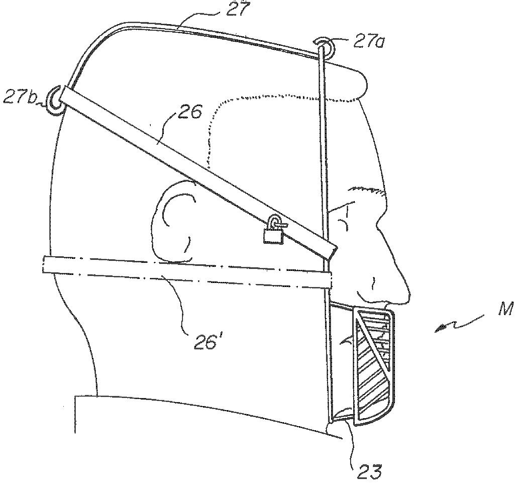 Colitz Wacky Patent July