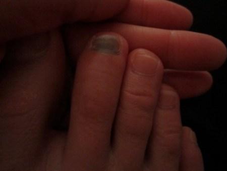 colleen-bruised-toe